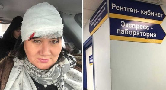 Депутат Хурала Бурятии разбила голову в центре Улан-Удэ